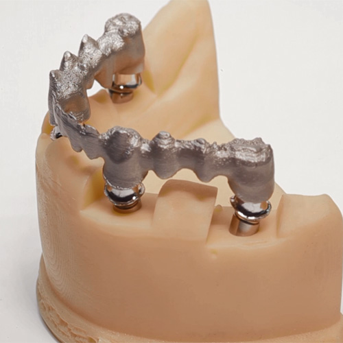 3D Metal Printing for Dental Implants