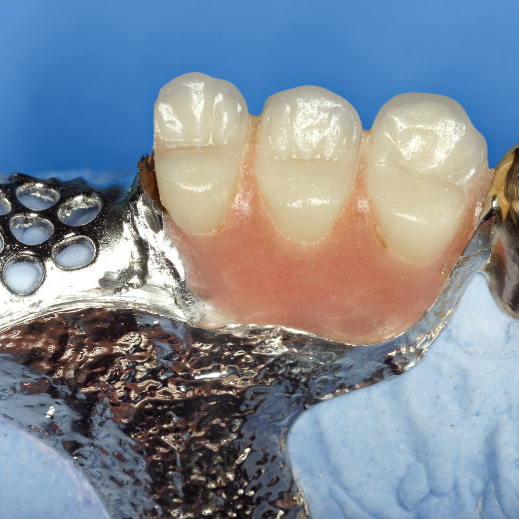 weld-dental